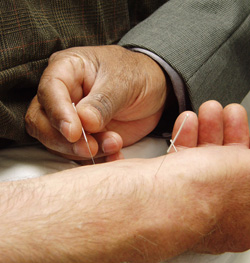 Acupuncture is a popular Chinese medical treatment; photo courtesy Kyle Hunter