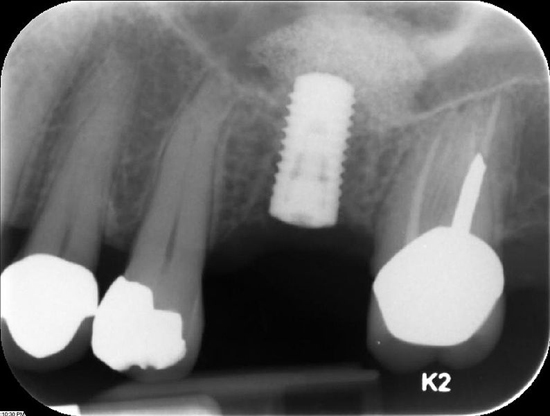 X-ray of a dental implant titanium post; image courtesy DRosenbach