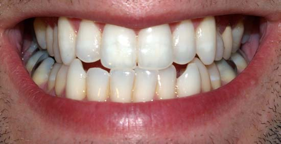 Keeping your teeth clean and healthy; photo courtesy David Shankbone